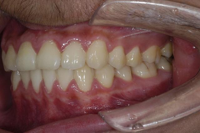 一、上下牙弓间关系与合面接触关系  上颌第一恒磨牙近中颊尖咬合于下颌第一恒磨牙近中颊沟上。同样重要的是上颌第一恒磨牙远中颊尖的远中斜面咬合与下颌第二磨牙近中颊尖的近中斜面。上颌尖牙咬合与下颌尖牙和第一双尖牙之间。  1.上第一恒磨牙的近中颊尖咬合于下第一恒磨牙的近中颊沟。 2.