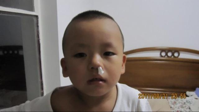 鼻子老流鼻血怎么办