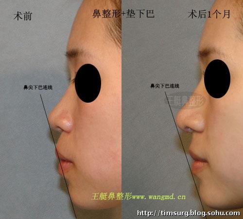 嘴巴突时的鼻子和下巴整形(术后1个月)